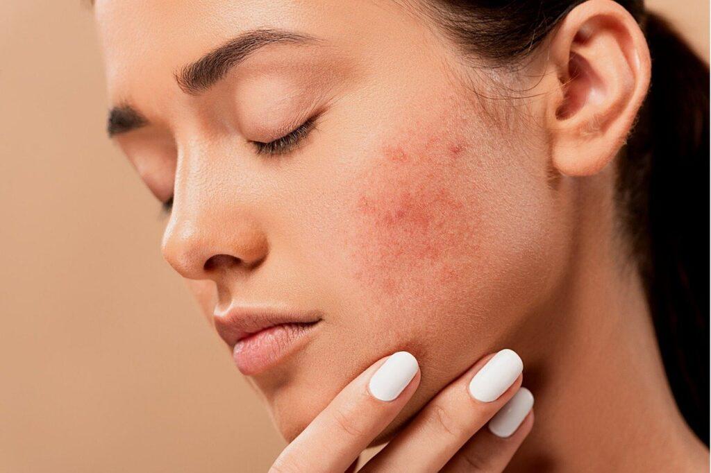 tratamientos faciales acne